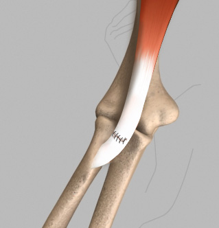 Distal Biceps Tendon Repair
