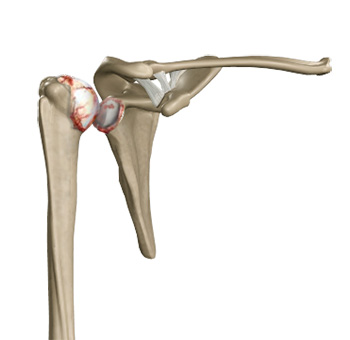 Shoulder Specialist South Cheshire | Shoulder Joint Surgery